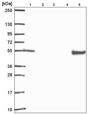 Western blot - Anti-Retinoid X Receptor beta/RXRB antibody (ab221115)