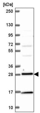 Western blot - Anti-Rab3D antibody (ab221125)
