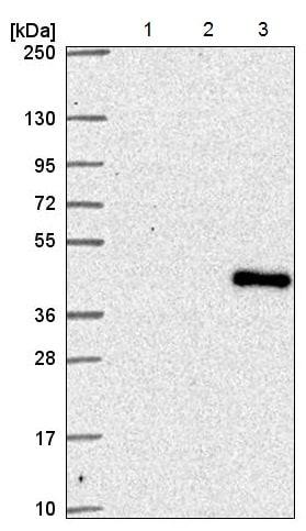 Western blot - Anti-STAF65 gamma antibody (ab221136)