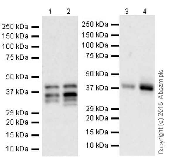Western blot - Anti-PITX2/RGS antibody [EPR22417] (ab221142)