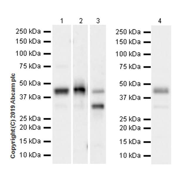 Western blot - Anti-Ataxin 3 antibody [EPR22418-147] (ab221143)