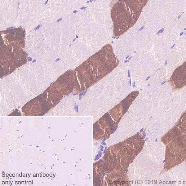 Immunohistochemistry (Formalin/PFA-fixed paraffin-embedded sections) - Anti-Fast Myosin Skeletal Heavy chain + MYH4 antibody [EPR22880-64] (ab221149)