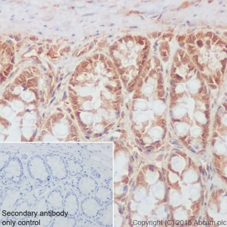 Immunohistochemistry (Formalin/PFA-fixed paraffin-embedded sections) - Anti-Rho A + B + C antibody [EPR18299] - BSA and Azide free (ab221161)