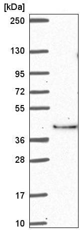 Western blot - Anti-ABI2 antibody (ab221177)