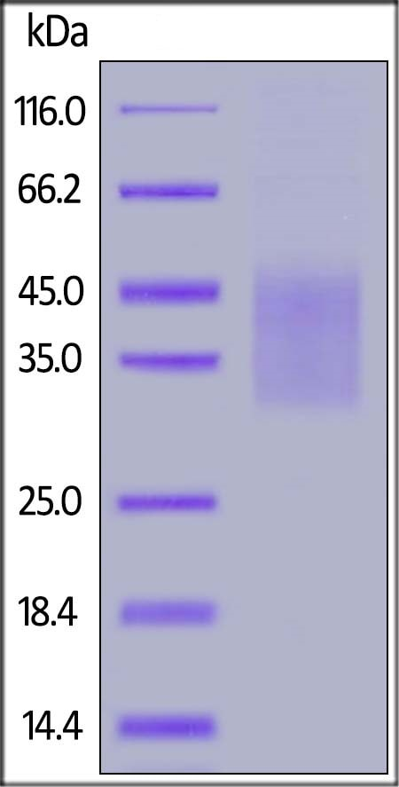 SDS-PAGE - Recombinant Human IL-18BP protein (His tag) (ab221201)