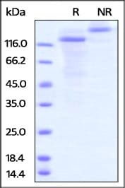 SDS-PAGE - Recombinant Human LOXL2 protein (Fc Chimera) (ab221204)