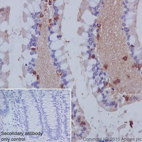 Immunohistochemistry (Formalin/PFA-fixed paraffin-embedded sections) - Anti-CD103 antibody [EPR4166(2)] - Low endotoxin, Azide free (ab221210)