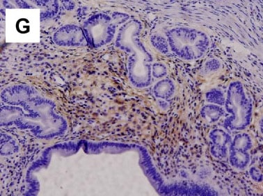 Immunohistochemistry (Formalin/PFA-fixed paraffin-embedded sections) - Anti-p75 NGF Receptor antibody [EP1039Y] - Low endotoxin, Azide free (ab221212)