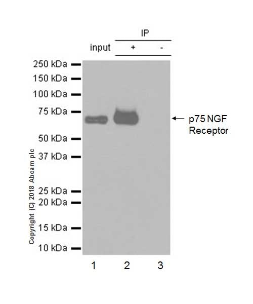 Immunoprecipitation - Anti-p75 NGF Receptor antibody [EP1039Y] - Low endotoxin, Azide free (ab221212)