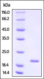 SDS-PAGE - Recombinant Human NCALD protein (His tag) (ab221345)