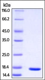 SDS-PAGE - Recombinant Human PMP2 protein (His tag) (ab221346)