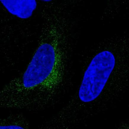 Immunocytochemistry/ Immunofluorescence - Anti-LOXL1 antibody (ab221362)