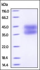 SDS-PAGE - Recombinant human IL-2 Receptor alpha protein (Active) (ab221397)