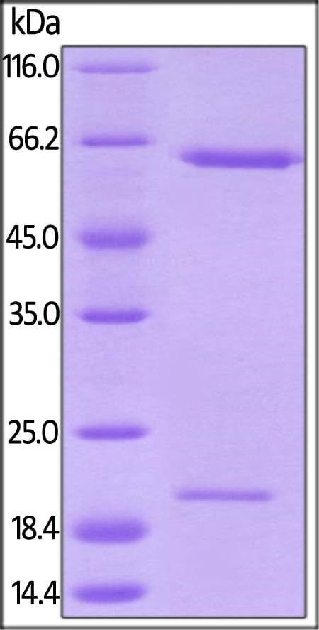 SDS-PAGE - Recombinant rhesus monkey PCSK9 protein (Active) (ab221401)