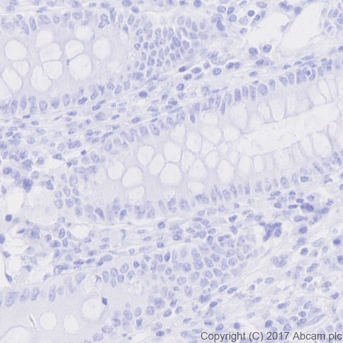 Immunohistochemistry (Formalin/PFA-fixed paraffin-embedded sections) - Anti-nkx6.1 antibody [EPR20328] (ab221544)