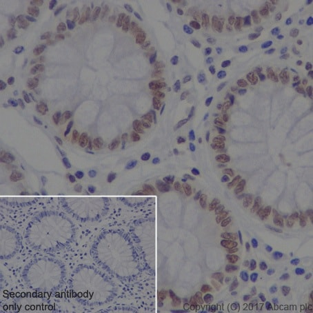 Immunohistochemistry (Formalin/PFA-fixed paraffin-embedded sections) - Anti-DEK antibody [EPR20401] (ab221545)