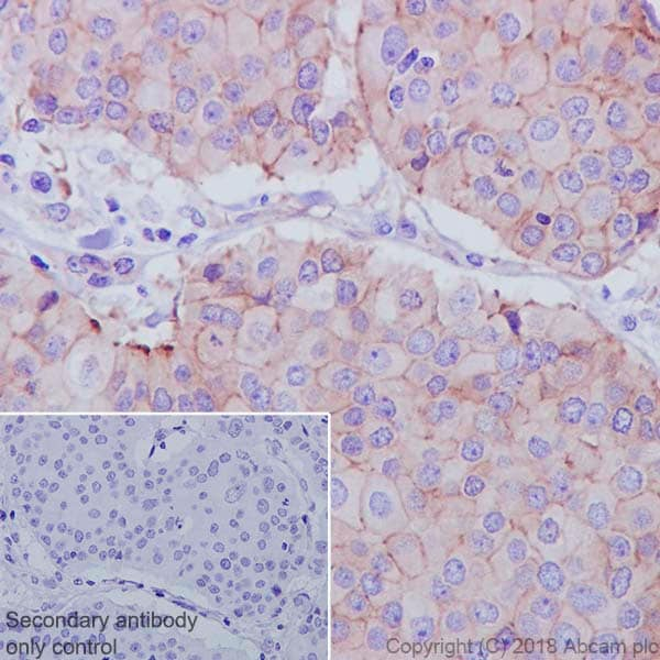 Immunohistochemistry (Formalin/PFA-fixed paraffin-embedded sections) - Anti-ZO1 tight junction protein antibody [EPR19945-224] (ab221546)