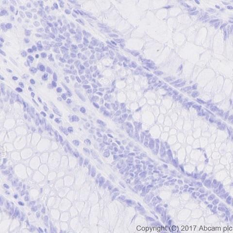 Immunohistochemistry (Formalin/PFA-fixed paraffin-embedded sections) - Anti-nkx6.1 antibody [EPR20405] (ab221549)