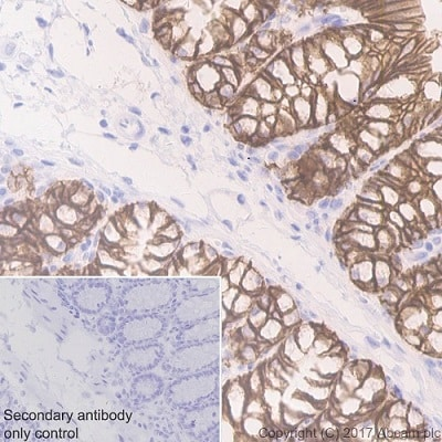 Immunohistochemistry (Formalin/PFA-fixed paraffin-embedded sections) - Anti-EpCAM antibody [EPR20533-63] (ab221552)