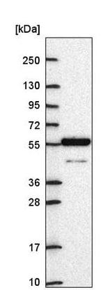 Western blot - Anti-ARNTL2 antibody (ab221557)
