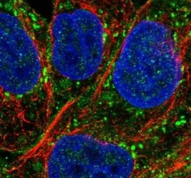 Immunocytochemistry/ Immunofluorescence - Anti-PAG antibody (ab221564)