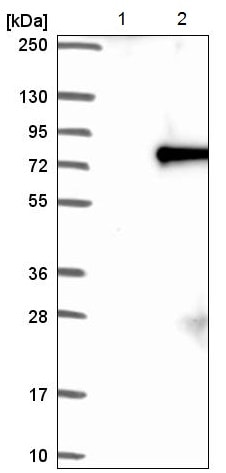 Western blot - Anti-ACOX2 antibody (ab221588)