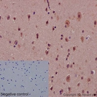 Immunohistochemistry (Formalin/PFA-fixed paraffin-embedded sections) - Anti-Notch1 antibody [EP1238Y] - BSA and Azide free (ab221603)