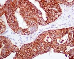 Immunohistochemistry (Formalin/PFA-fixed paraffin-embedded sections) - Anti-APG5L/ATG5 antibody [EPR1755(2)] - BSA and Azide free (ab221604)