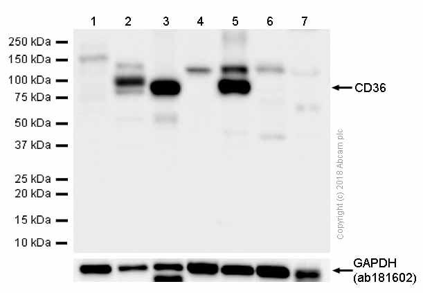Western blot - Anti-CD36 antibody [EPR6573] - Low endotoxin, Azide free (ab221605)