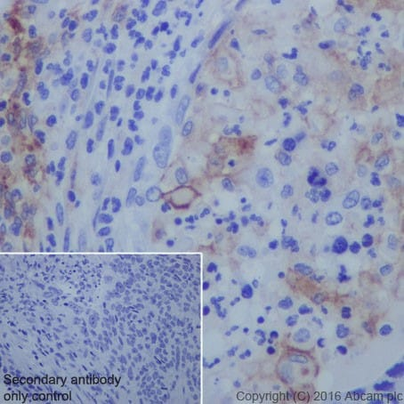 Immunohistochemistry (Formalin/PFA-fixed paraffin-embedded sections) - Anti-PD-L1 antibody [EPR19759] - BSA and Azide free (ab221612)
