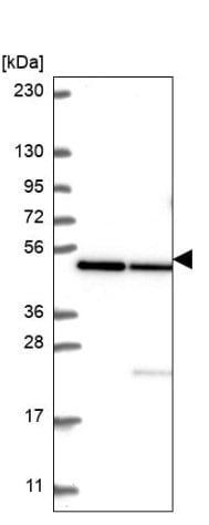 Western blot - Anti-HADHB antibody (ab221644)