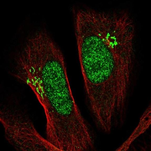 Immunocytochemistry/ Immunofluorescence - Anti-PSMD11 antibody (ab221645)