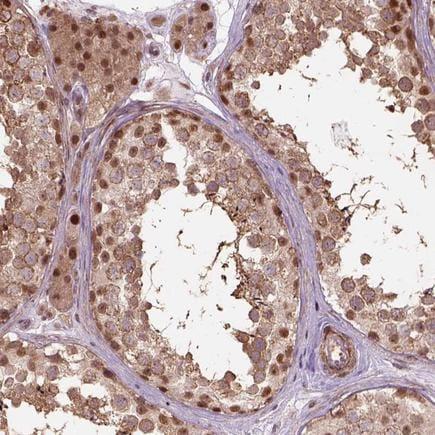 Immunohistochemistry (Formalin/PFA-fixed paraffin-embedded sections) - Anti-PSMD11 antibody (ab221645)