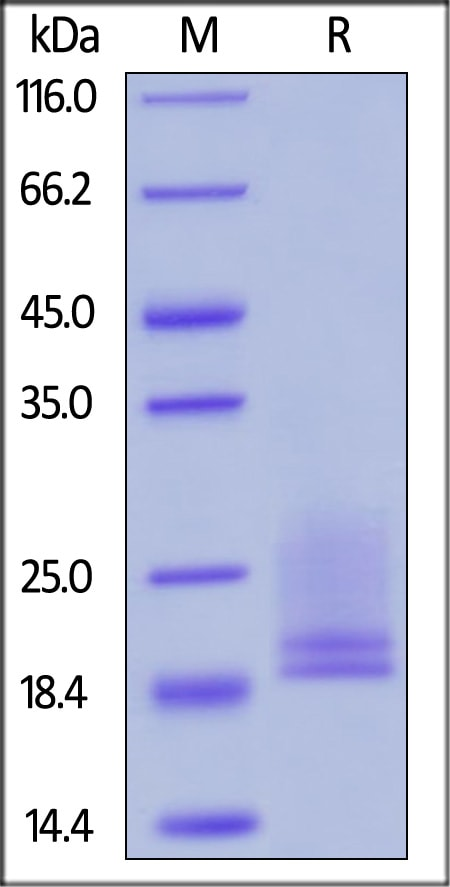 SDS-PAGE - Recombinant human CD3 epsilon + CD3D protein (Active) (ab221659)