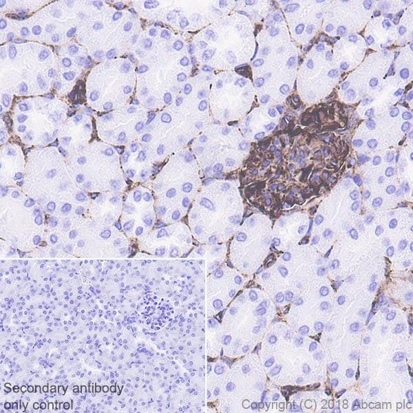 Immunohistochemistry (Formalin/PFA-fixed paraffin-embedded sections) - Anti-Nestin antibody [EPR22023] (ab221660)