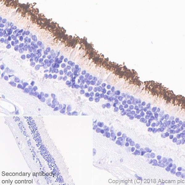 Immunohistochemistry (Formalin/PFA-fixed paraffin-embedded sections) - Anti-Rhodopsin antibody [EPR21876] (ab221664)