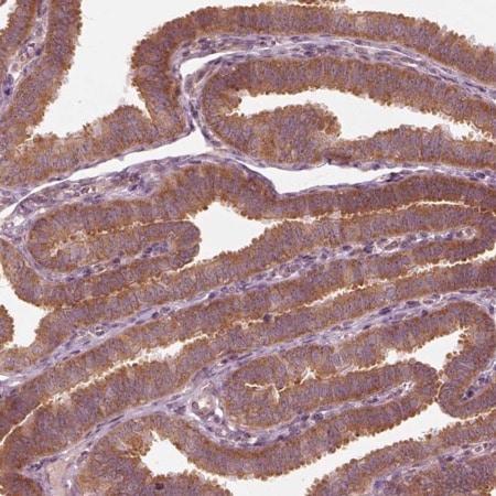 Immunohistochemistry (Formalin/PFA-fixed paraffin-embedded sections) - Anti-CNOT2 antibody (ab221711)