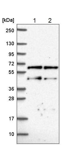 Western blot - Anti-CNOT2 antibody (ab221711)