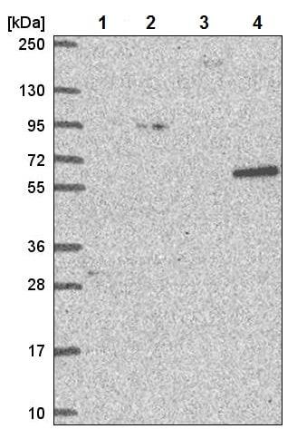 Western blot - Anti-NCAPH2 antibody (ab221722)