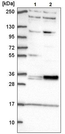 Western blot - Anti-TSPAN11 antibody (ab221740)