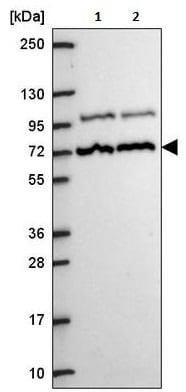 Western blot - Anti-MED25 antibody (ab221741)