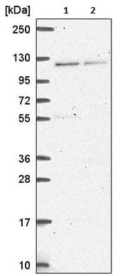 Western blot - Anti-HERC4 antibody (ab221757)