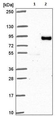 Western blot - Anti-FIG4 antibody (ab221758)