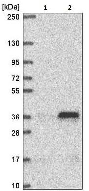Western blot - Anti-MTERF antibody (ab221766)