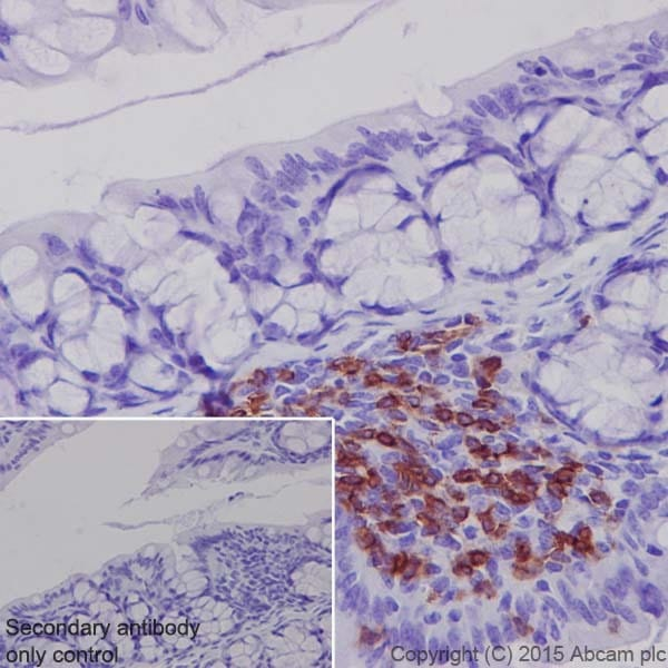 Immunohistochemistry (Formalin/PFA-fixed paraffin-embedded sections) - Anti-CD4 antibody [EPR19514] - Low endotoxin, Azide free (ab221775)