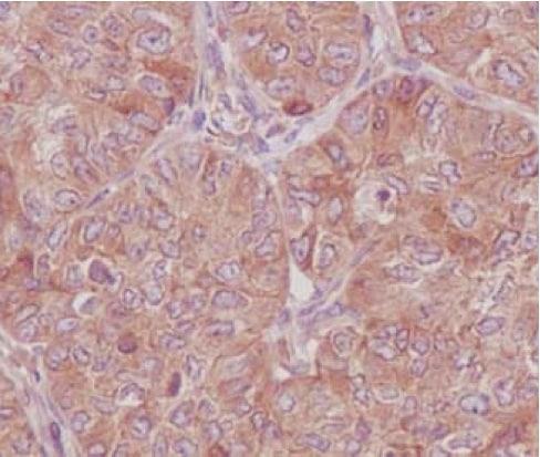 Immunohistochemistry (Formalin/PFA-fixed paraffin-embedded sections) - Anti-RAB8A antibody [EPR14873] - Low endotoxin, Azide free (ab221780)
