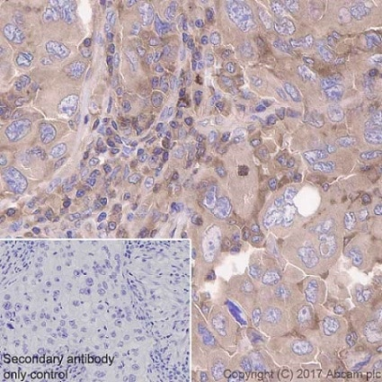 Immunohistochemistry (Formalin/PFA-fixed paraffin-embedded sections) - Anti-CDC42 antibody [EPR15620] - Low endotoxin, Azide free (ab221781)