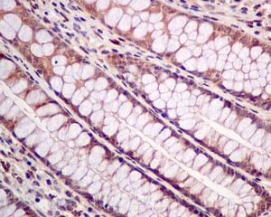 Immunohistochemistry (Formalin/PFA-fixed paraffin-embedded sections) - Anti-PTEN antibody [EPR9941-2] - Low endotoxin, Azide free (ab221782)