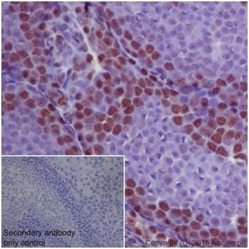Immunohistochemistry (Formalin/PFA-fixed paraffin-embedded sections) - Anti-METTL3 antibody [EPR18810] - BSA and Azide free (ab221795)