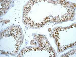 Immunohistochemistry (Formalin/PFA-fixed paraffin-embedded sections) - Anti-Rad51 antibody [EPR4030(3)] - BSA and Azide free (ab221796)